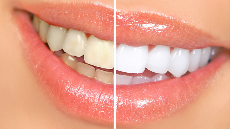 Teeth bleaching with urine