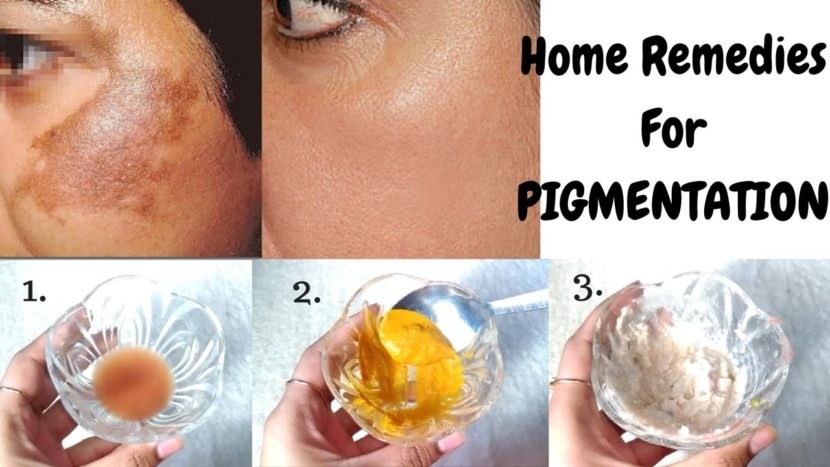 Top 10 Most Effective Face Masks to Combat Skin Pigmentation