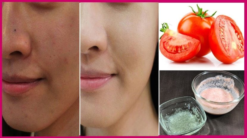 Top 10 Most Effective Face Masks to Remove Skin Tan