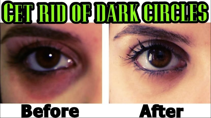 Top 10 Most Effective Tips to Get Rid of Dark Circles