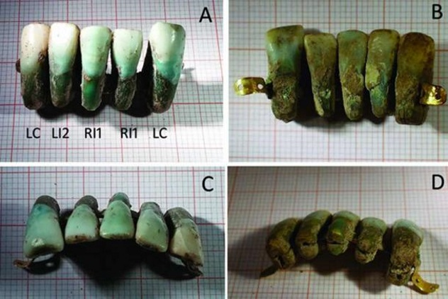 7 Ancient Disgusting Facts about Dentistry